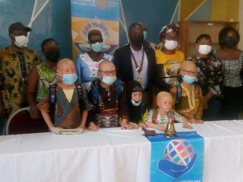 Don de fournitures Rotary 2 1 493x370 - Rentrée scolaire : Le Rotary Club Lomé-Perle au chevet des enfants atteints d'albinisme